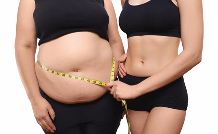 Vesekövet okoz az elhízás